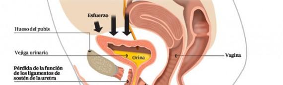 Incontinencia Urinanria