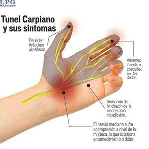 sindrome-del-canal-carpiano